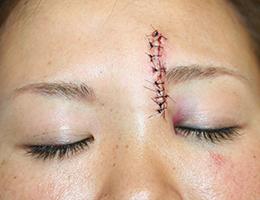 美容 外科 傷跡 修正