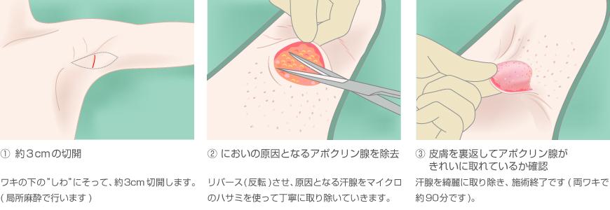ワキガ 治療